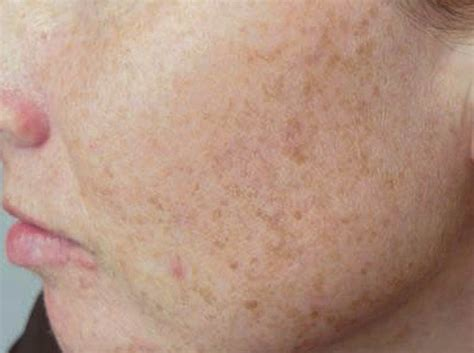 Chocolate Spots by Spots On Skin 10 Remedies Health Top Priority