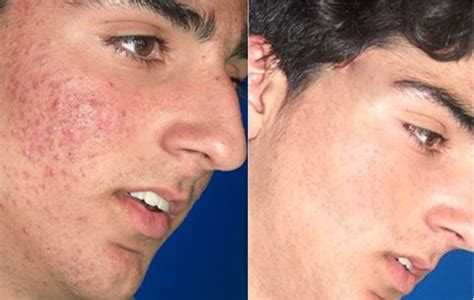 dermatology blue light treatment blue light acne treatment miami fl bay pointe