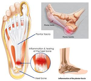 Can Foot Detox Help With Plantar Fasciitis by Aid For Plantar Fasciitis Aid For Free