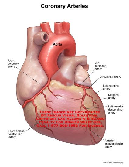 what color are arteries coronary arteries