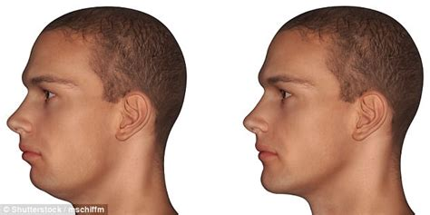 pictures of a woman s neck and jaw line botox injections can lift your jawline daily mail online
