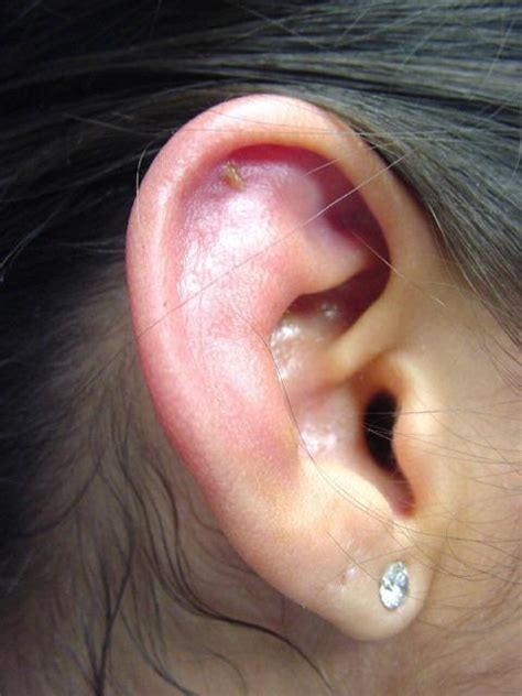 ear infections how to avoid an infection piercing news