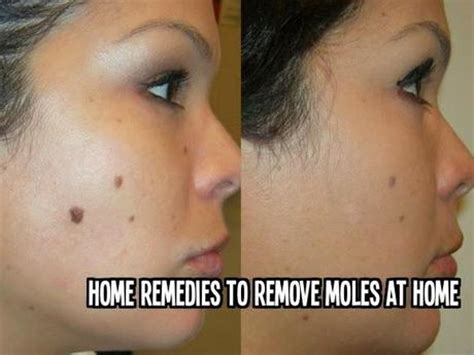 mole removal at home 28 images best 25 mole removal at