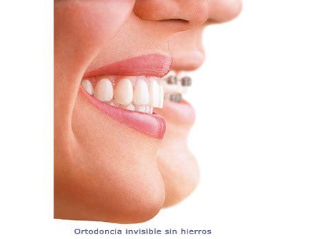 alinear imagenes latex invisaling ortodoncia invisible sin hierros janer barcelona