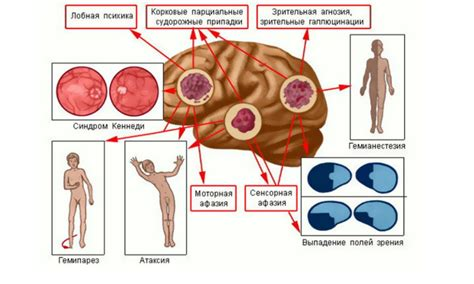 brain tumor diagram brain diagram headaches gallery how to guide and refrence