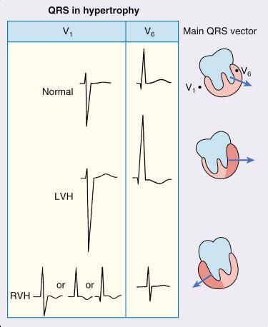 Type B Rvh - ventricular hypertrophy