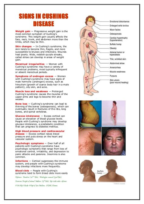 cusions disease cushings syndrome