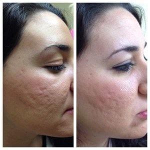 Bio Acne By Azalika Glow prp plasma treatment injections skin nv