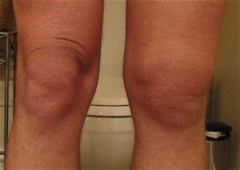 sore legs and after standing front range rambler swollen knee