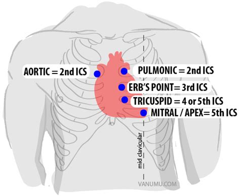 z pattern heart sounds midterm cardiac issues nursing msn 378 with mccarthy at
