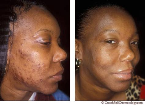 no no hair removal for african americans 11 best images about ingrown hair on pinterest singapore