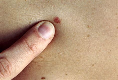 About My Skin Cancer by Skin Cancer Moles Skin Cancer Mole Mole Skin Cancer