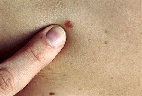 mole skin cancer skin cancer mole mole skin cancer