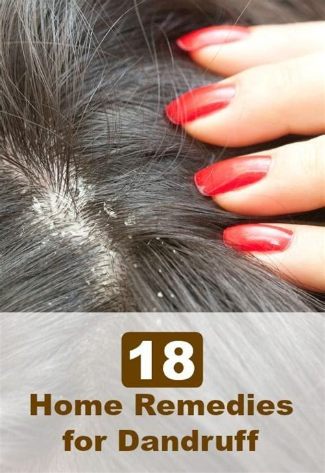 18 home remedies for dandruff hair heaven