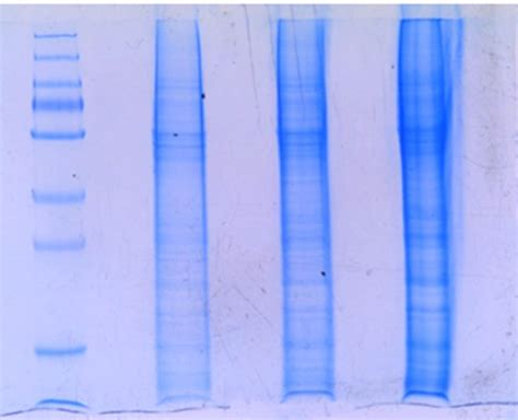 problems with buffer telnetlib migrated gel electrophoresis why my proteins are migrating like