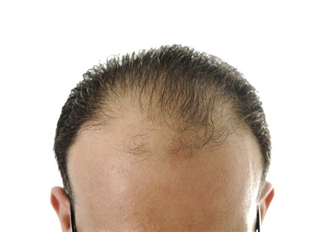 mens crown thinning brush back why is my hair thinning thinning hair in your 20 s 30 s