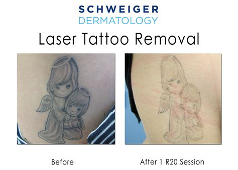 laser tattoo removal jobs tattoo removal