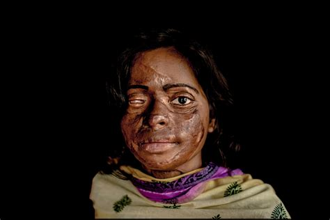 burn victim meaning nepal court orders rapid compensation and care for acid