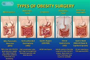 Update on obesity management amp surgical options