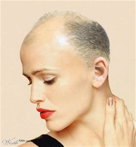 bald patches good for a pixie calvicie masculina y femenina diferencias instituto
