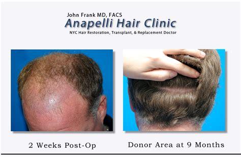hair transplant jeddah follicular hair transplant hairstylegalleries com