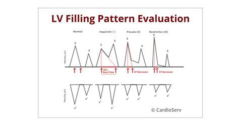 impaired relaxation pattern of lv diastolic filling understanding the basics lv filling patterns