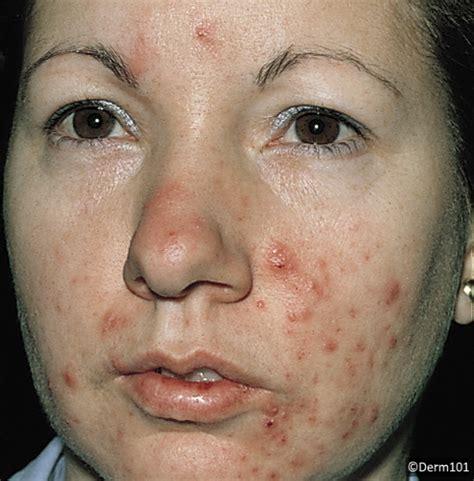 acne on chin acne vulgaris derm101