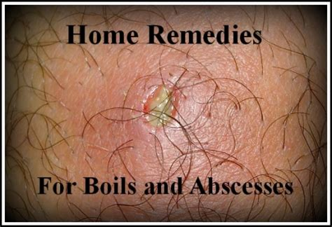 20 home remedies for boils