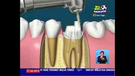 Rawatan Pemutihan Gigi Di Klinik Kerajaan 21 mei rawatan akar gigi