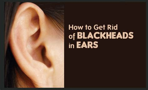 How To Get Rid Of Your Blackheads by How To Get Rid Of Blackheads In Ear