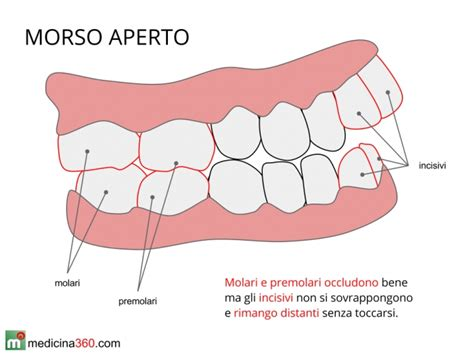 apparecchi dentali interni malocclusione dentale o mandibolare rimedi conseguenze e