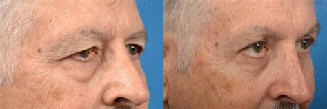 eyelid surgery photos melbourne fl patient 52314