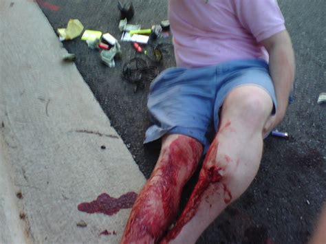 L Picture That Looks Like Legs by Bestand Broken Leg Jpg
