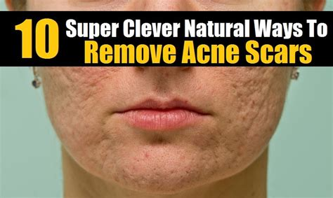 10 Ways To Treat Acne Scars by 10 Clever Ways To Remove Acne Scars