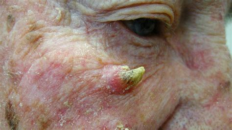 cutaneous horn cutaneous horn pictures removal causes and more