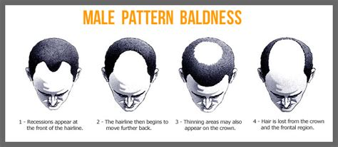male pattern baldness fabrickated