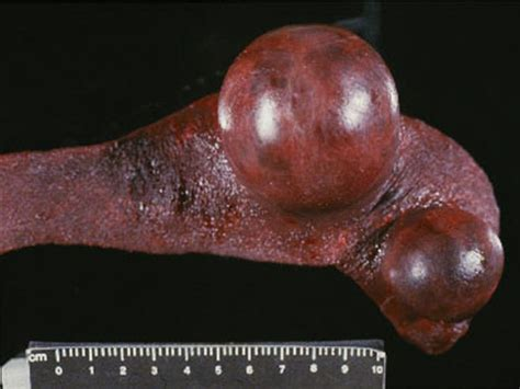 spleen tumor splenic neoplasms cancer of spleen spleen cancer