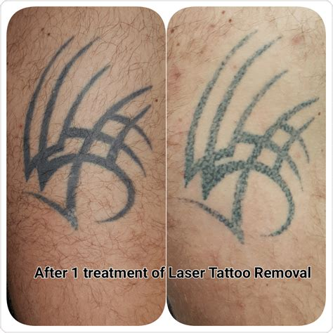 after tattoo removal gallery c h laser treatments removal gloucester