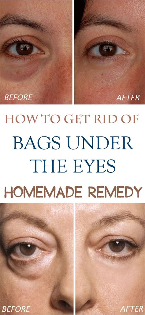 Get Rid Of Eye Bags And Circles Podcast by Remedies For Bags Indiscreet