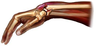 colles fracture treatment pictures definition surgery complications diseases pictures