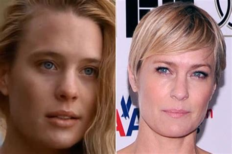 robin wright nose job robin wright before and after transformation