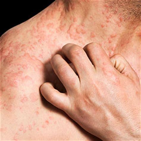 rashes lupus symptoms in women lupus symptoms rash on back
