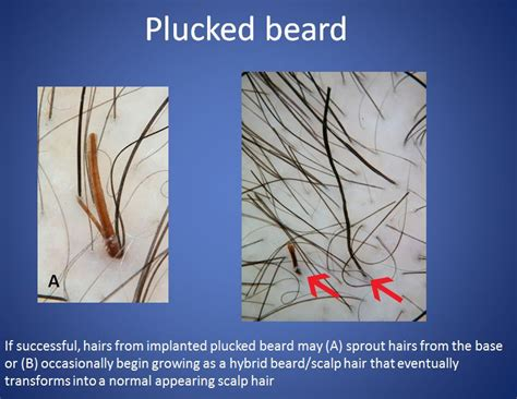 plucked hair photos dr cooley s 2012 presentation on hair duplication and