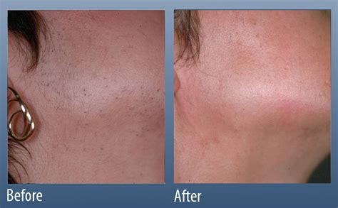 hair i woman s chin sideways hair removal main line for laser surgery in ardmore pa