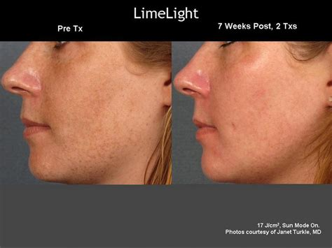 Jens Removal Second Laser Treatment by Cutera Limelight Ipl Treatment Helps To Remove All Of