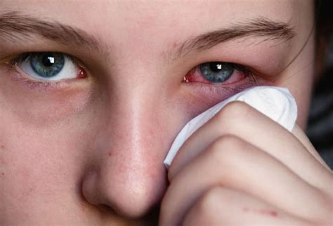 how to get rid of a pink eye only knew