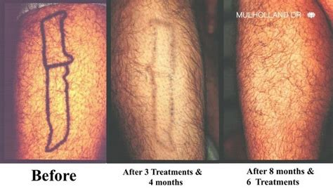tattoo removal toronto 21 best tattoo removal images on pinterest laser tattoo