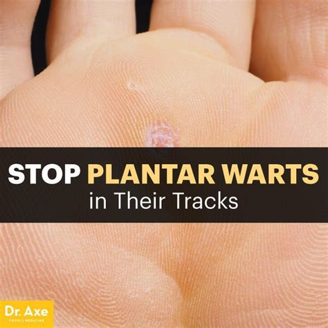 How Do You Remove A Planters Wart by 25 Best Ideas About Plantar Wart Removal On