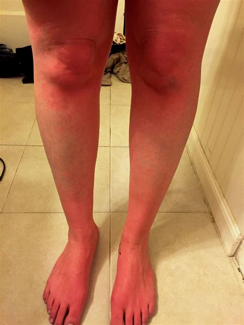 Why Do Legs Itch After Shower by Urticaria Photographing Pots