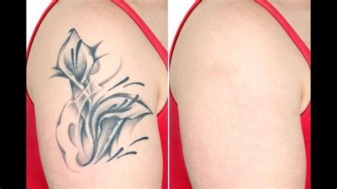 tattoo removal az 100 cascade removal 35 photos 100